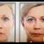 Ella Bella Beauty Clinique:Anti-Aging Skin Care- DFW