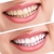 Stacy Smiles