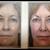 Ella Bella Beauty Clinique:Non Surgical Skin Tightening-DFW
