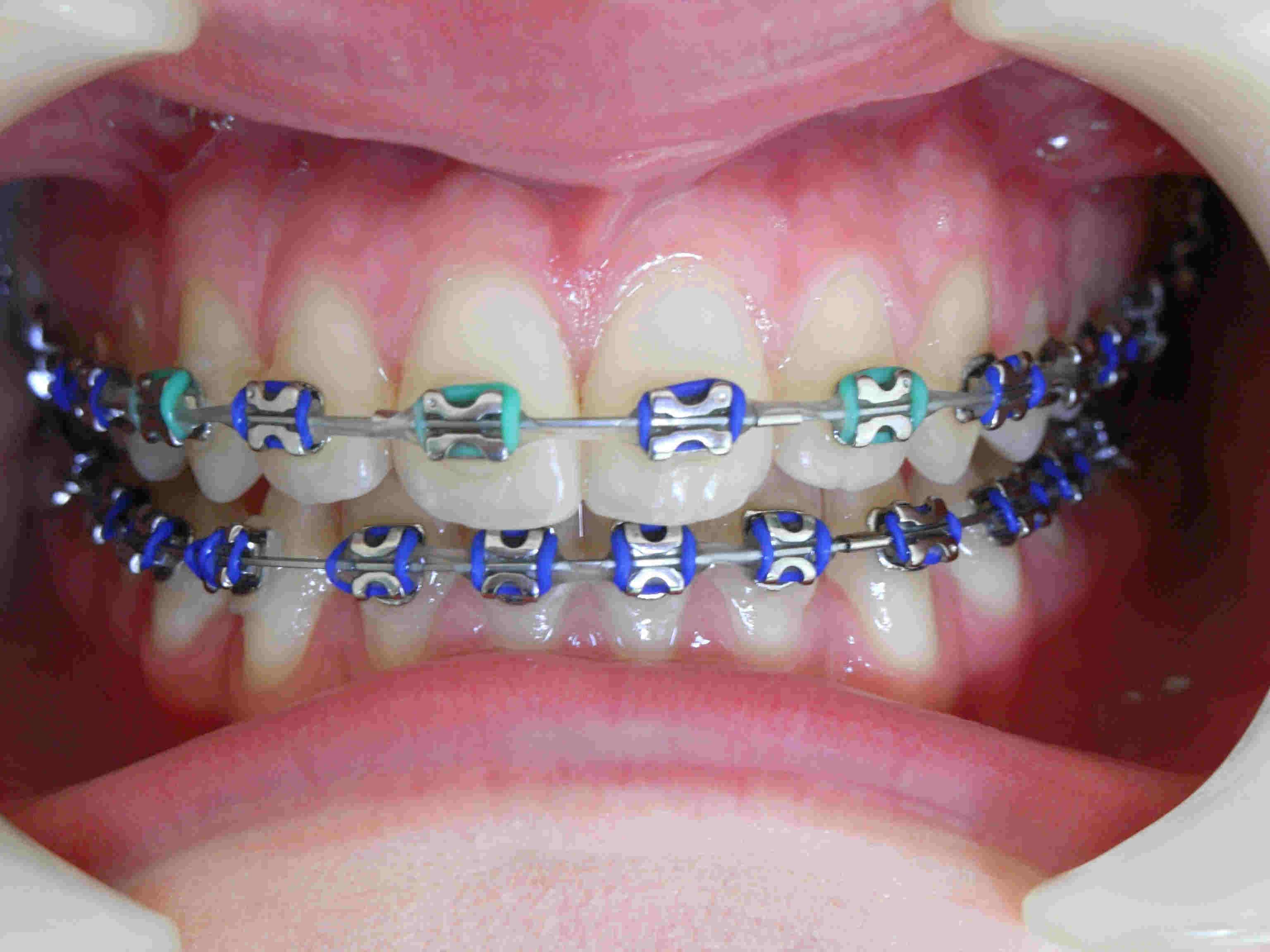 professional orthodontic specialist