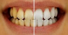 Dental Specialist Of Miami - Miami, FL