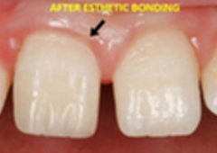 A-Dental Center - North Hollywood, CA
