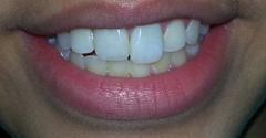 Rabile Family Dentistry - Irving, TX