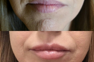 Simply Beautiful Medical Spa offers lip filler, laser hair removal, microblading, and brazilian waxing.