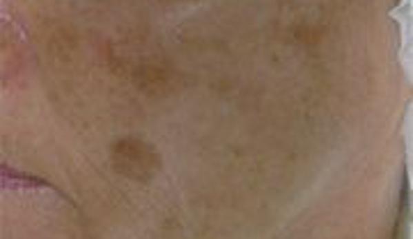 Sonic Skincare - Houston, TX