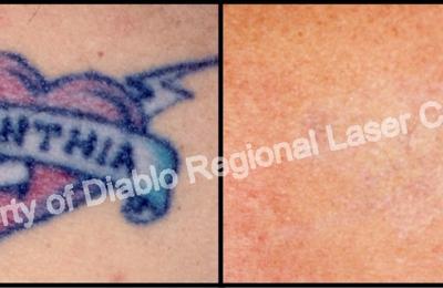 Diablo Regional Laser Center - Walnut Creek, CA
