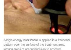 Dermatology Laser & Vein Specialists of the Carolinas PLLC - Charlotte, NC