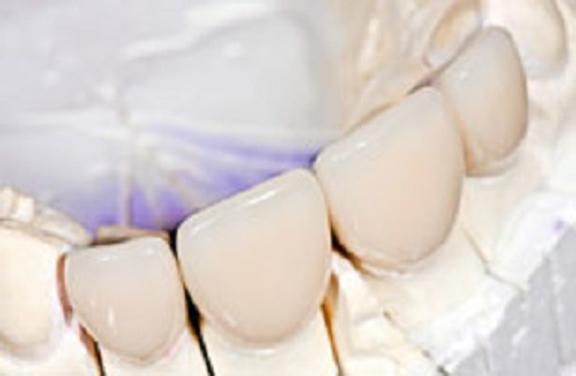 Gentle Dental - Middletown, CT. Endodontist Middletown, CT