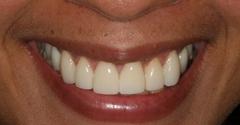 Issaqueena Prosthodontics - Seneca, SC