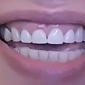 Southern Dental Associates - Houston, TX. Final result. the first two crowns do not match at the gun line, in length or width. Crown is crooked!