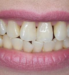 Enhanced Smiles - Gastonia, NC