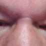 The Dermatology, Laser & Vein Center - Cincinnati, OH. Fixed this in 1 session!