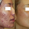 Perfect Skin Laser Center