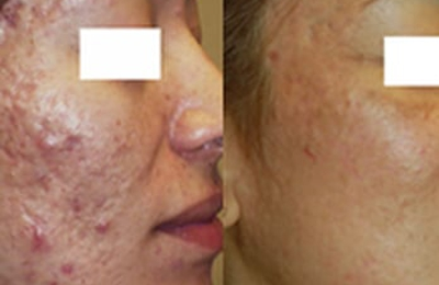 Perfect Skin Laser Center - Tempe, AZ