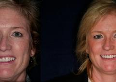 Revitalizing Smiles - Fairfield, CT