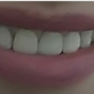 Southern Dental Associates - Houston, TX. first set of crowns. Had to many gaps, kept getting food caught between  my teeth. Never had this issue before.