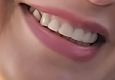 Southern Dental Associates - Houston, TX. Dentist shaved teeth because they did not line up. She made them too small.
