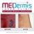 MEDermis Laser Tattoo Removal