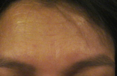 Miracle Eyebrows - Brookfield, WI. Uneven arch, one arch is higher then the other, one brow is pointer the the other and one is slightly higher then the other