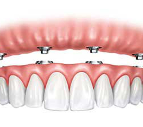 St. Lucie Center For Cosmetic Dentistry - Port Saint Lucie, FL