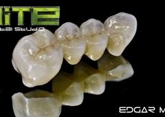 Elite Dental Studio - Gainesville, GA