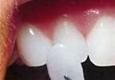 Premier Esthetics - Dental Office of Mark R Gadberry DDS Inc - Covina, CA