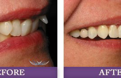 Advanced Dentistry Of Charlotte - Dr. Christopher A. Bowman - Charlotte, NC