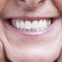 Salem Dental Center