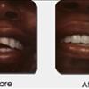 GentleCare Dentistry