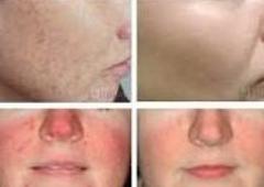 las vegas laser skin care - Las Vegas, NV