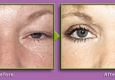 Graper Cosmetic Surgery - Charlotte, NC