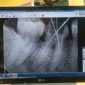 New Image Dental - Inglewood, CA