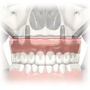 River Valley Advanced Dental & Implant Center