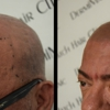 DermiMatch Hair Clinic - SMP (scalp micropigmentation)